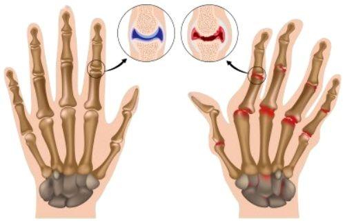 Боли в суставах пальцев рук при артрите