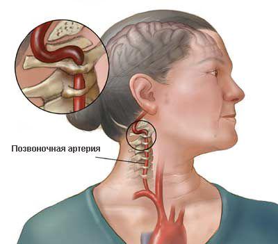 Синдром позвоночной артерии или нейроваскулярная патология